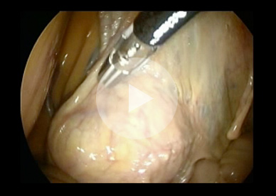 Equine Ovarian Tumour Removal: Bourton Vale Equine Clinic, Glos
